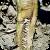 Infection by Verticillium dahliae on sunflower